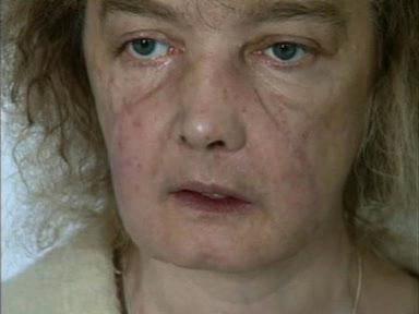 El Primer trasplante de cara
